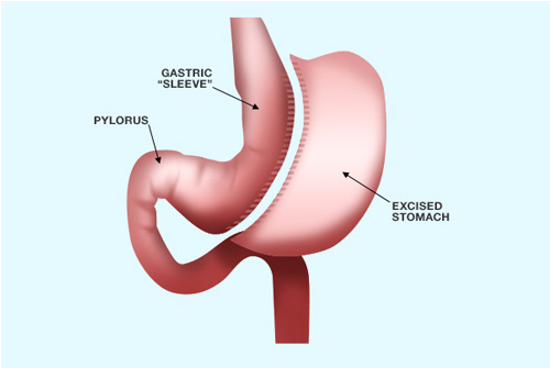Laparoscopic Sleeve Gastrectomy